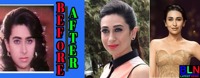 KARISHMA KAPOOR Bollywood Actresses Before and After Plastic Surgery