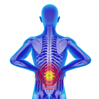 Could You be Suffering from Lumbar Lordosis?