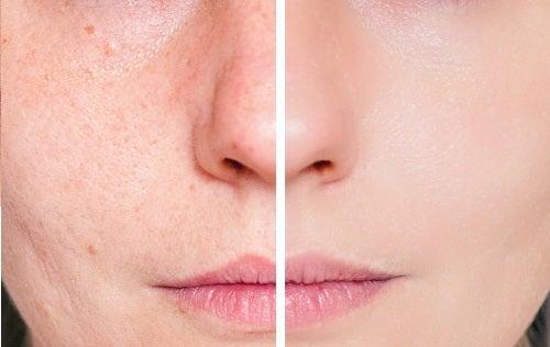 Sẹo Mụn là gì? Cách cải thiện làn da bị sẹo mụn