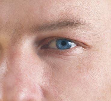 Como eliminar olheiras com Hipoglós e Hirudoid?