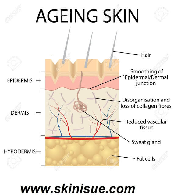 What is Aging Skin Blood Vessels