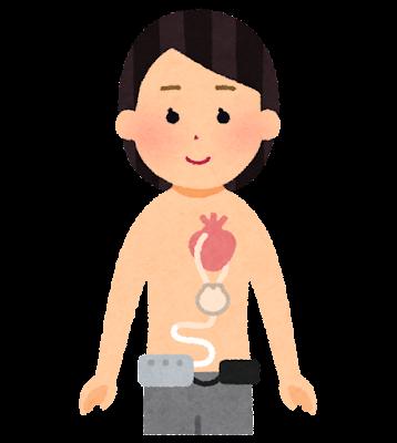 補助人工心臓を付けた人のイラスト(女性)