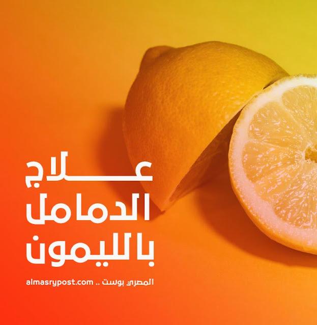 علاج الدمامل نهائيا عن طريق الليمون