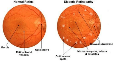 eye damage in diabetes patient