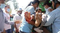 Myanmar: 18 thường dân thiệt mạng trong cuộc biểu tình chống đảo chính của Quân đội