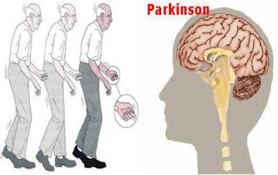 Pengobatan Tradisional Penyakit Parkinson