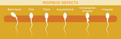 Midpiece defect morfologi sperma abnormal