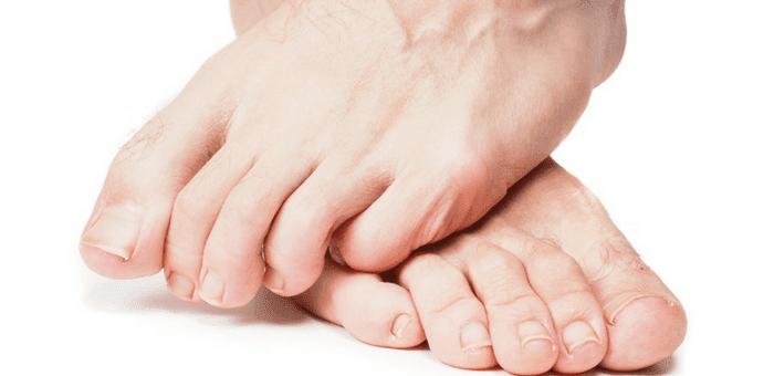 cómo eliminar hongos en los pies