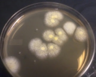Fungus in Aseptic Area