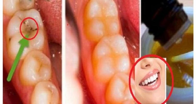 وصفة منزلية خطيرة للتخلص من تسوس الأسنان و إزالة جير الأسنان نهائيا