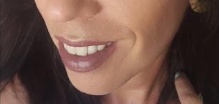tono 160 en labios