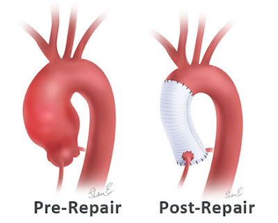 Aortic root surgery