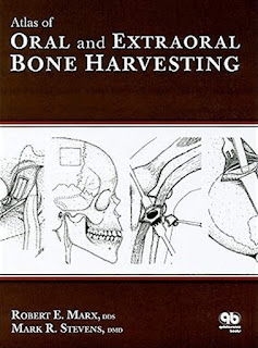 Atlas of Oral and Extraoral Bone Harvesting