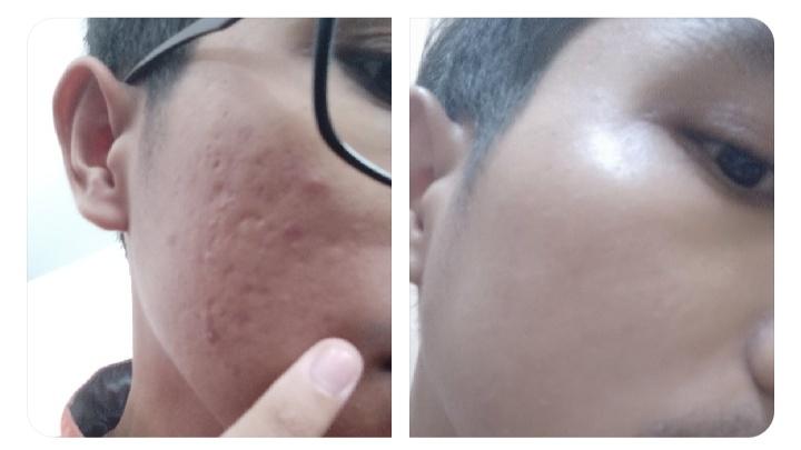 Cara memperbaiki tekstur kulit yang rusak