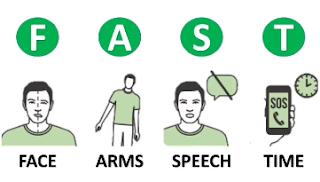 Methode FAST pour tester la réponse motrice et sensitive