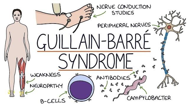 Τι είναι το Σύνδρομο Guillain – Barre