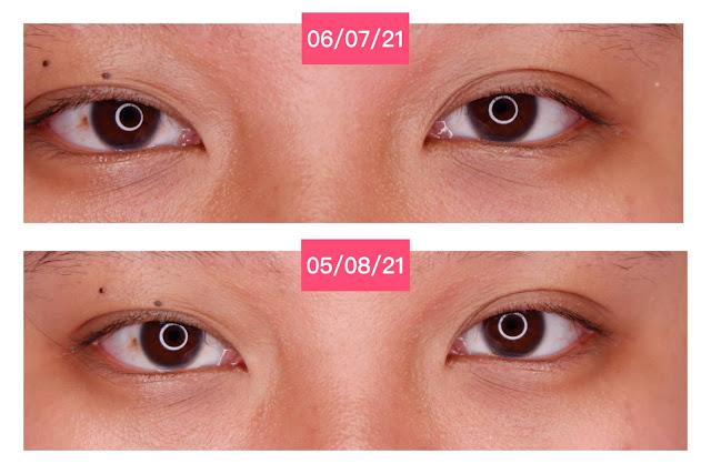 elsheskin-5-in-1-eyessential-serum