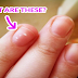 White Spots On Your Nails: What They Causes And Really Mean For Your Health