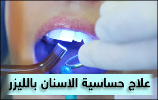 علاج حساسية الاسنان بالليزر