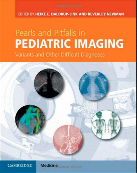 Pearls and Pitfalls in Pediatric Imaging Variants and Other Difficult Diagnoses (2014) [PDF]