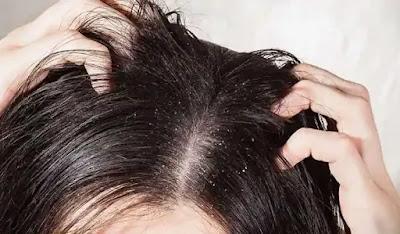 تفسير حلم الشعر الخفيف في مقدمة الراس