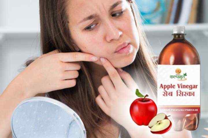 3 Cara Mudah Mengatasi Jerawat dengan Cuka Apel