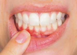 masoodon mein dard in hindi, masoodon mein dard  aur khoon ki pareshani door in hindi, Gums pain and blood problems go away in hindi, Healthy gums are a sign of good health in hindi, Pain and bleeding in the gums due to carelessness has become a common problem in hindi, Citrus fruit in hindi, masoodon ka pain in hindi, masoodon ke barein mein in hindi, masoodon ki jankari in hindi, masoodon ka pdf in hindi, masoodon ki photo, masoodon ki jpg, masoodon ki jpeg, masoodon ki pdf, masoodon mein dard kiyon hota hai in hindi, masoodon mein dard ki ilaj in hindi, masudo me dard ka gharelu ilaj in hindi, masudo me sujan ka karan in hindi, masudo me dard in hindi, masuda fulne ki wajah in hindi, masudo me mawad in hindi, masudo me infection ka ilaj in hindi,  masuda pain in hindi, masuda pain article in hindi, masuda pain ki photo, sakshambano ka matlab in hindi सक्षम, sakshambano in hindi, sakshambano in eglish, sakshambano meaning in hindi, sakshambano in hindi, sakshambano ka matlab in hindi, sakshambano photo, sakshambano photo in hindi, sakshambano image in hindi, sakshambano image, sakshambano jpeg, sakshambano site in hindi, sakshambano wibsite in hindi, sakshambano website, sakshambano india in hindi, sakshambano desh in hindi, sakshambano ka mission hin hindi, sakshambano ka lakshya kya hai,  sakshambano ki pahchan in hindi,  sakshambano brand in hindi,  sakshambano company in hindi,  sakshambano author in hindi,  sakshambano kiska hai hindi,