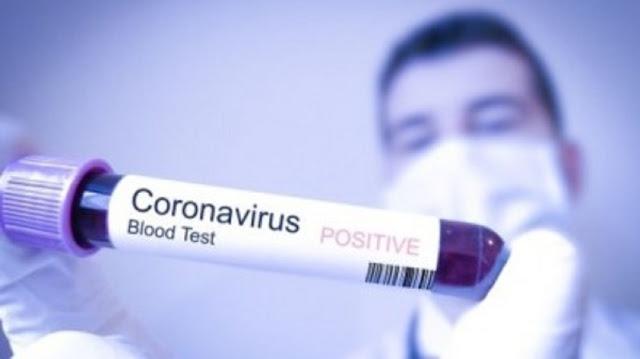 TERNYATA! Virus Corona Adalah Bukti Kebenaran Alquran