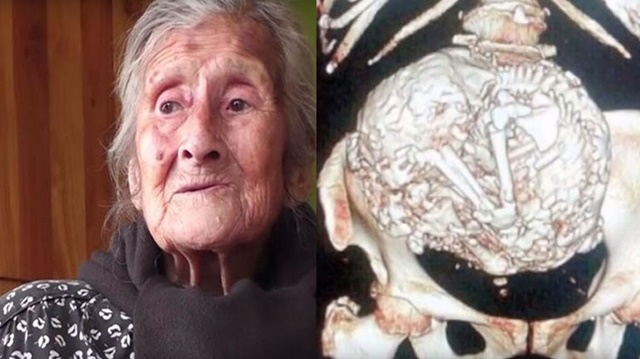 Nenek Estela Melendez Hamil Selama 60 Tahun