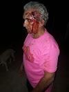 CRUELDADE: Polícia divulga fotos de casal de idosos agredido por genro na zona rural de Elesbão Veloso.