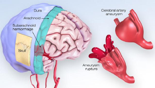 Penyebab dan Pengobatan Pendarahan Otak