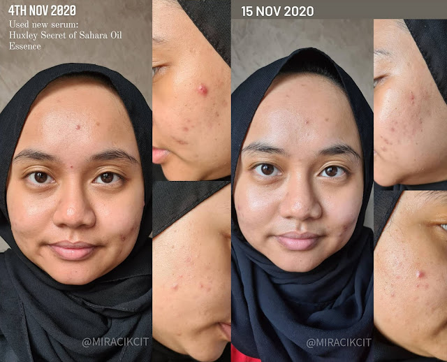 Before and After using Huxley Oil Essence Review
