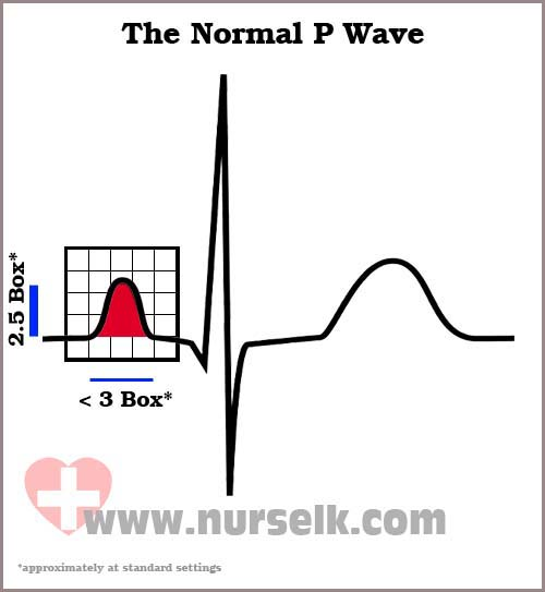 how to find p wave on ecg