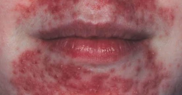 Katarak akibat steroid sp laboratories causing infection