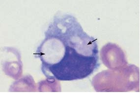 A monocyte that has phagocytosed two erythrocytes and harbors them in its wide cytoplasm (arrows) (sample taken after bone marrow transplantation).