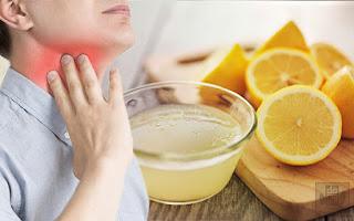 Cách chữa viêm amidan tại nhà nhanh, dễ, an toàn