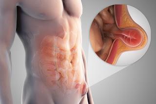 Obat Hernia Herbal Alami 100% Ampuh Mengobati