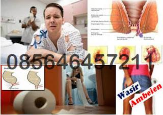 Obat Wasir (Hemoroid) Bengkak Tanpa Zat Kimia