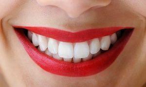 Cara tepat untuk membersihkan gigi yang baik dan benar