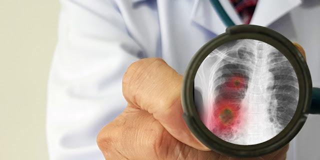 Mengejutkan Dunia, Ternyata Virus Corona Tetap Hidup di Paru-paru Korban Yang Sudah Meninggal