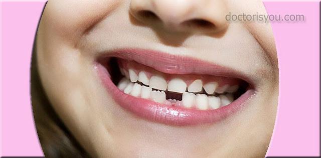 الدكتور هو انت صحة الفم والأسنان عند الأطفال صحة الطفل في صحة اسنانه كم عدد اسنان الانسان؟ تكون الاسنان يتم تعلم صحة الأسنان منذ الطفولة المبكرة لماذا يجب أن تعتني بأسنان الأطفال؟ زيارات منتظمة لطبيب الأسنان لمنع تسوس الأسنان معجون الاسنان معجون الاسنان للأطفال المينا العاج اللب الملاط الرباط تعليم صحة الفم الى طفلك أهمية صحة الفم والأسنان عند الطفل  صحة الفم والأسنان عند الأطفال العناية بصحة فم و اسنان الاطفال