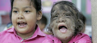16 niños estan sufriendo el sindrome del hombre lobo en europa.