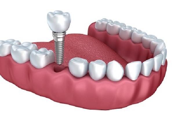 Kết quả hình ảnh cho Cách để lựa chọn phương pháp phục hình răng