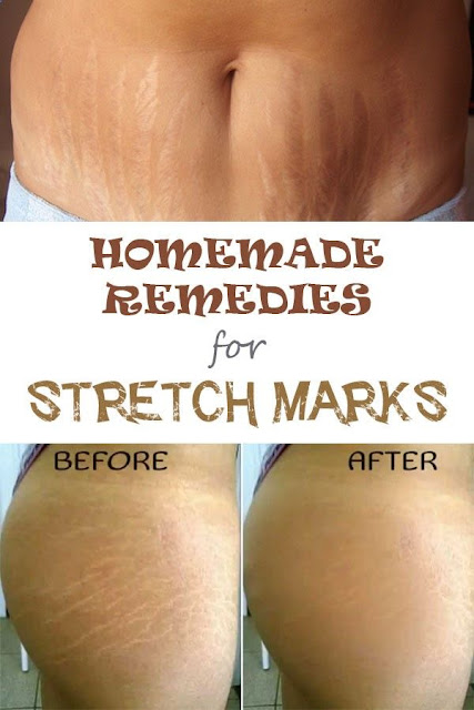 Ways to Remove Stretch Marks And Hide Them for Good