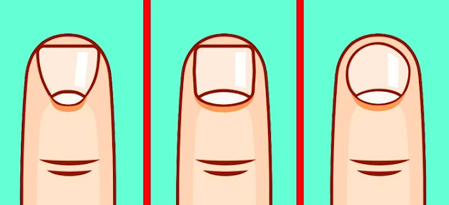 Shape Of Your Nail