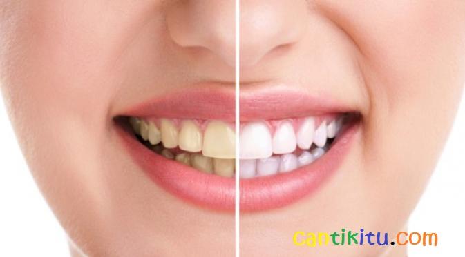 14 Cara Memutihkan Gigi Kuning Cepat Secara Alami Cantikitu