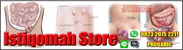 obat hernia tanpa operasi