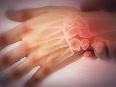 Cảnh báo: Đừng chủ quan khi bị đau khớp ngón tay