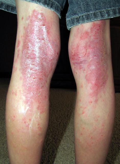 छाजन - एक्जीमा [ Eczema ] आखिर किस प्रकार का रोग है ? क्या है इसके पर्याय नाम , परिचय , प्रकोप , कारण , लक्षण , चिकित्सा ? Eczema [Eczema] What type of disease is it? What is its synonym name, introduction, outbreak, cause, symptoms, medicine?