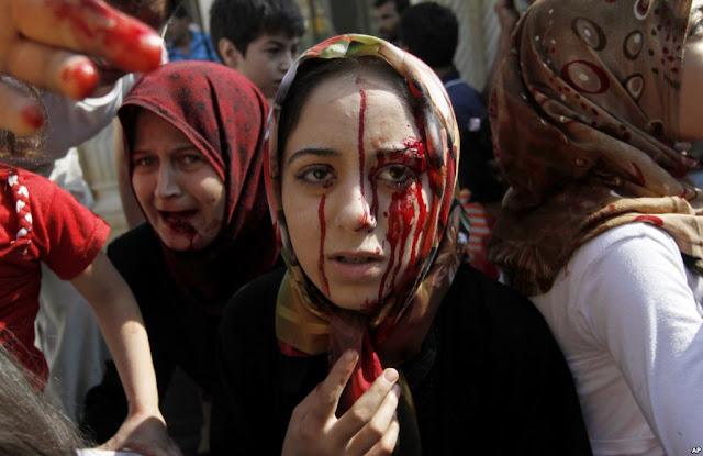 """Perawat Aleppo: """"Saya Lebih Baik Bunuh Diri, Daripada Tubuh Ini Dinikmati Tentara Bashar Assad"""""""